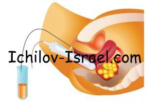 EKO Izrail 300x225 - Искусственное оплодотворение в Израиле