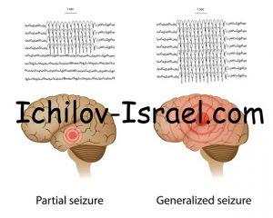 Izrail Lechenie epilepsii 300x240 - Лечение эпилепсии в клинике Ихилов