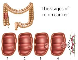 Rak pryamoi kishki lechenie 300x229 - Лечение колоректального рака