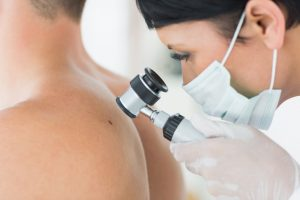 кожи 300x200 - Лечение рака кожи в клинике Израиля