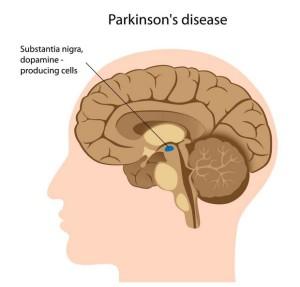 Лечение болезни Паркинсона в Израиле. Клиника Ихилов
