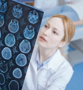 Лечение рака мозга в Израиле в клинике Ихилов Сураски